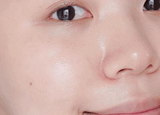 รีวิว Clear Nose Dark Spot Bright Serum เซรั่มรอยดำเซรั่มลดเลือนจุดด่างดำ